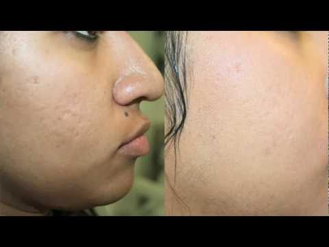 Dark Skin Acne Scar Removal