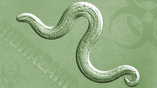 Insights On Pbs Hawai I Rat Lungworm What You Need To Know What You Need To Do