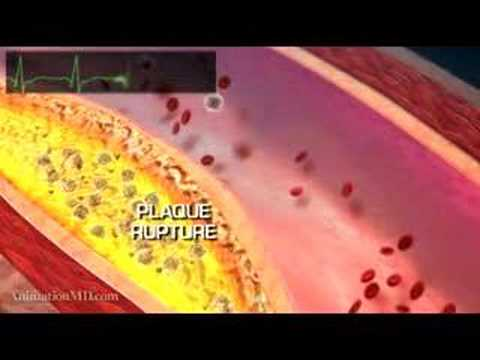 HOW A FATAL HEART ATTACK HAPPENS - TIM RUSSERT