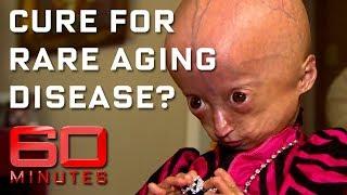 Rare disease ages children eight times faster | 60 Minutes Australia