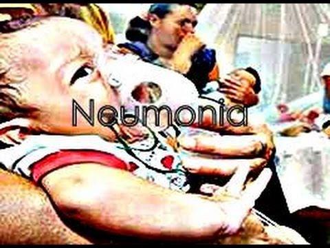 Neumonia (Pulmonia)