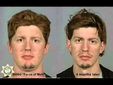 Faces of Meth Before And After Mug Shots  Educational Video-