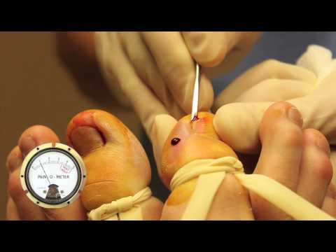 WARNING: ADULT CONTENT (GROSS) - Double Barrel Ingrown Toenail Surgery in HD with Pain-O-Meter