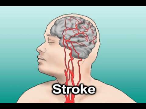 Hypertension and Stroke (Health Tip)
