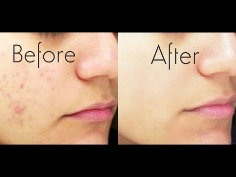pimples and acne treatments Acne forms pimples, also known as zits or spots, and can be persistent and difficult to control there are however safe and effective treatments available.