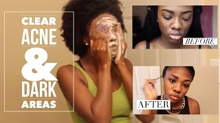 Daily Skin Care Routine | Clear Acne & Dark Spots | Tri Luma Review