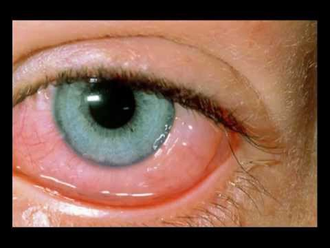 Conjunctiva Images - Photos - Pictures - CrystalGraphics