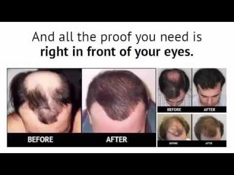 Restore Your Hair Loss Naturally - Secret Hair Restoration Formula