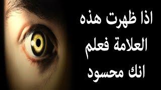 هذه العلامة اذا ظهرت عليك فعلم انك مصاب بالحسد , تعرف على طريقة علاج حسد العين