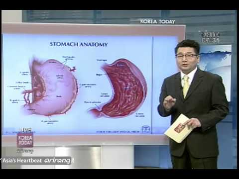 how to detect stomach cancer early