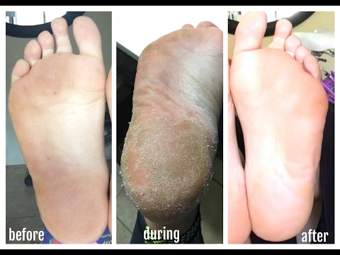 Baby Foot Review! Crazy Foot Peel!!
