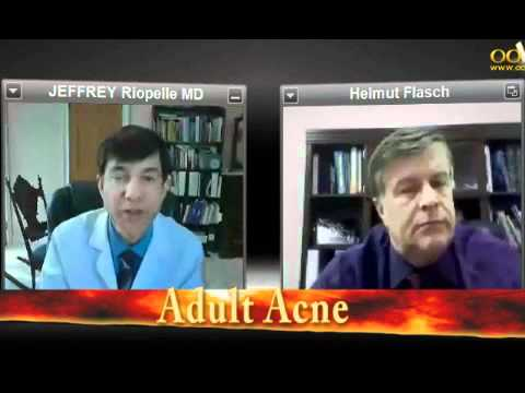 038-Adults With Acne Problems by Dr. Jeffrey Riopelle Cosmetic Surgeon San Ramon, CA
