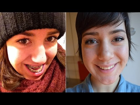 Double Jaw Surgery: Before, During and After (Pictures & Videos)