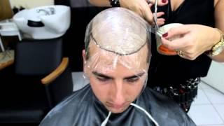 Implante Capilar não cirúrgico. Home Hair