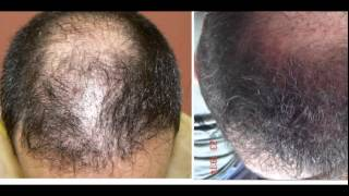 Terrible Hair Transplant with bad scarring Repaired