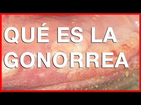 ¿Qué es la gonorrea?  ¿cuáles son los sintomas y tratamiento? thumbnail