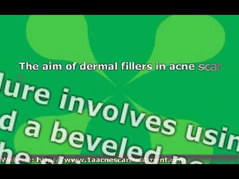 Acne Scar Treatment Procedures