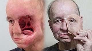 3D printed face gives man with half a face a new life; Face transplant before & after