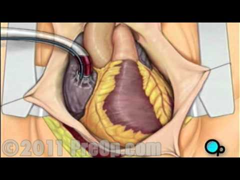 Heart, Coronary Artery Bypass Graft (CABG) Surgery PreOp® Patient Education HD