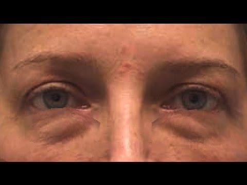 Мешки под глазами у беременных 12