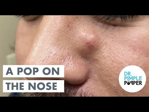 An Excor-CYST-em... with Dr Pimple Popper