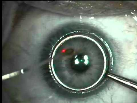 Asa Prk Vs. Lasik Eye Surgery video