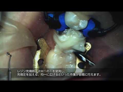 CRマスターを使用した下顎左側2級窩洞のCR充填