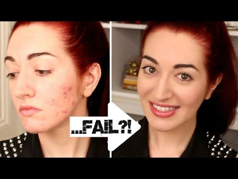 HOW TO: Quickly Cover Acne & Scarring! 5 Minute Makeup Challenge FAIL?!