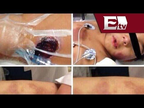 Detienen a la madre de Owen, niño brutalmente golpeado en el Estado de México / #RescatemosAOwen