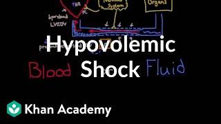 Hypovolemic shock   Circulatory System and Disease   NCLEX-RN   Khan Academy