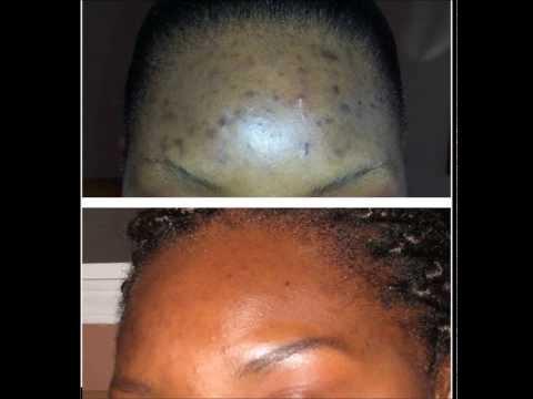 Review of Peau De Lune Lotion - Best Dark Spot Remover! Clear Your Acne Scares