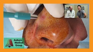 Nose Basal Cell Carcinoma Punch Biopsy | Auburn Medical Group