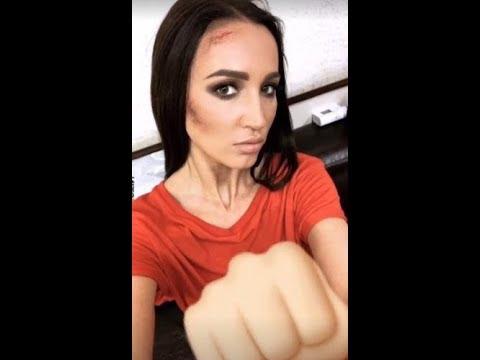 Ольга Бузова показала на видео страшные ссадины и синяки на лице