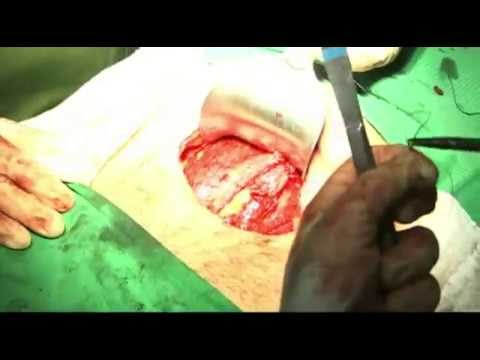 Histerectomia abdominal com anexectomia / Abdominal hysterectomy with adnexectomy