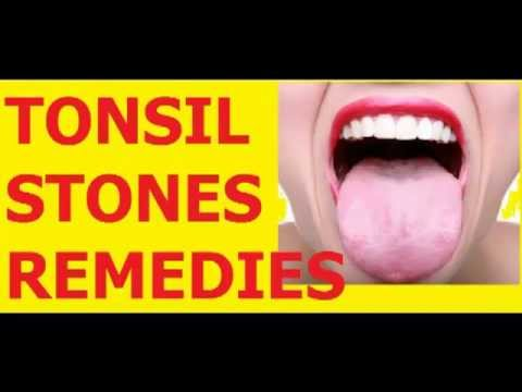 how to remove tonsil stones tonsil stones removal tonsillolith removed. Black Bedroom Furniture Sets. Home Design Ideas