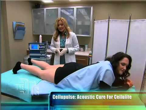 Shockwave AKA Acoustic Wave Therapy for Cellulite treatment on The Doctors