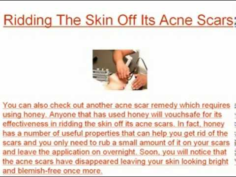A Home Acne Scar Remedy Can Prove As Effective As Surgery Or Medications