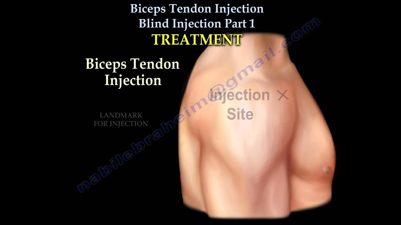 Biceps Tendon Injection. Blind Injection Part 1