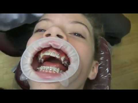Watch how we put your braces on! Music Videos