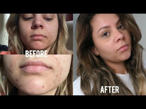 How I Faded My Acne Scars FAST   Banish Acne Scars Kit Review