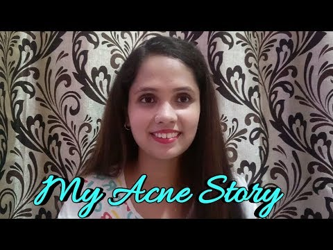 My Acne story in Hindi