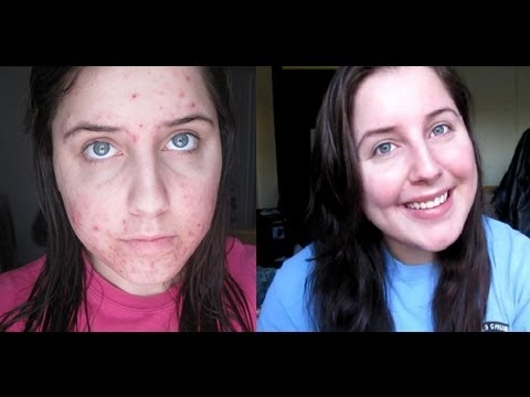Accutane Journey: 27 Weeks in 3 Minutes!