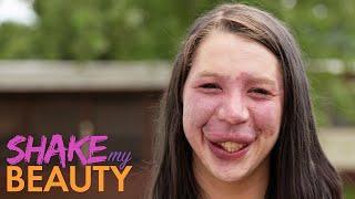 I Won't Cover My Birthmark For Bullies Anymore | SHAKE MY BEAUTY