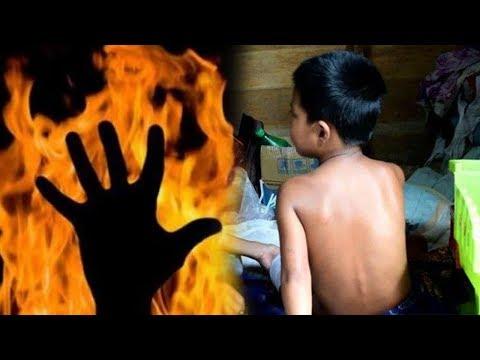 Bocah 8 Tahun Dipersekusi Temannya Suruh Minum Air Kencing, Kaki Dibakar Hingga Terancam Cacat