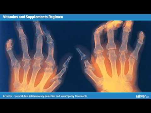 Arthritis - Natural Anti inflammatory Remedies and Naturopathy Treatments