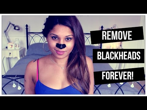 How To Remove BLACKHEADS Forever