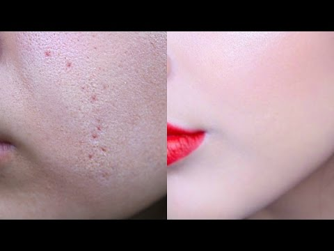 How I Hide My Acne Scars | My Foundation Routine