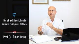 Dişeti Çekilmesi, Kemik Erimesi Ve İmplant Tedavisi - Prof. Dr. Ömer Kutay