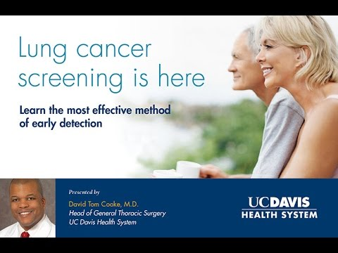 Lung Cancer Screening - It is Here