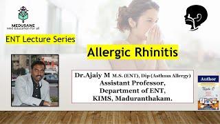 ALLERGIC RHINITIS   Otorhinolaryngology   Dr.Ajaiy M.S (ENT)   MEDUSANE.